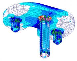 Implantatdesign Knie Simulation