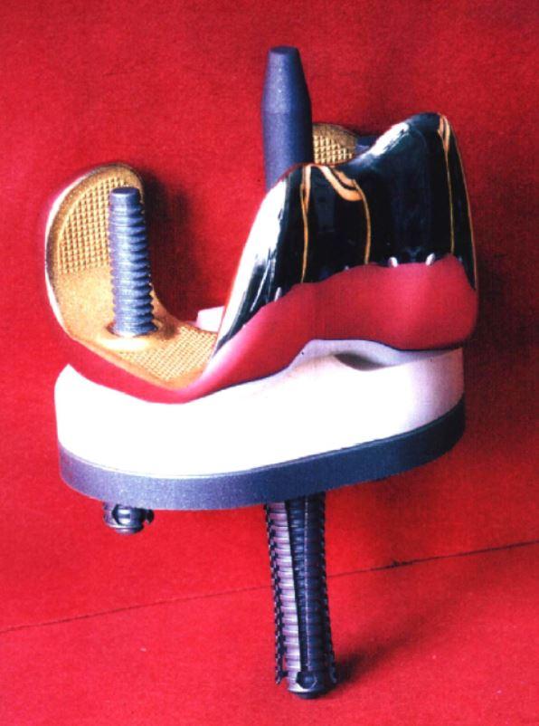 Implantatdesign Knie
