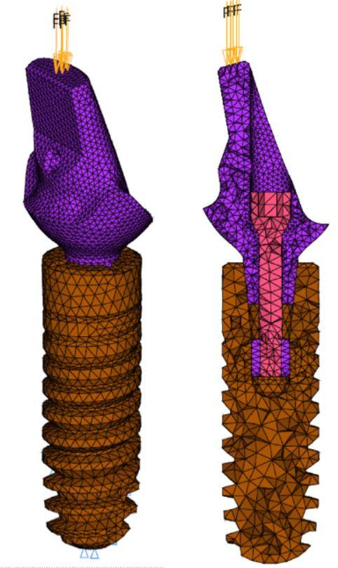 Zahnimplantat FE Berechnung